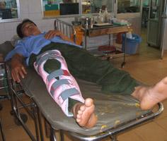 Phó phòng bảo vệ rừng Lê Xuân Nguyên bị xe lâm tặc đâm giập nát một bên đùi, phải khâu 40 mũi.